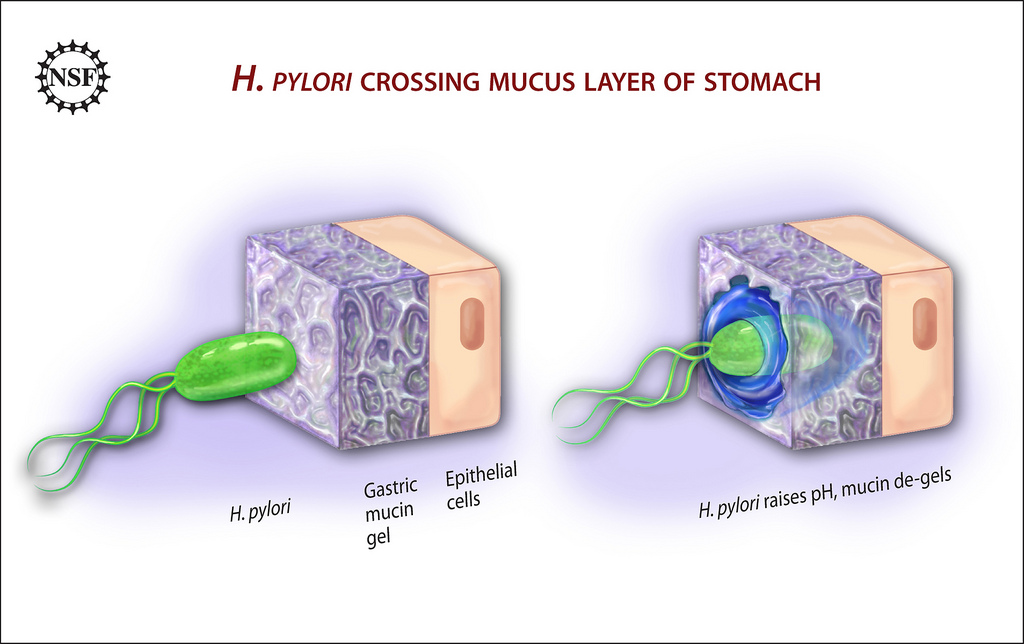 Image result for h pylori